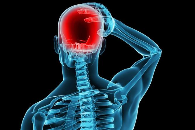 emicrania osteopatia